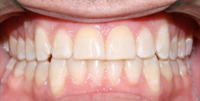 Invisalign_Adult-after