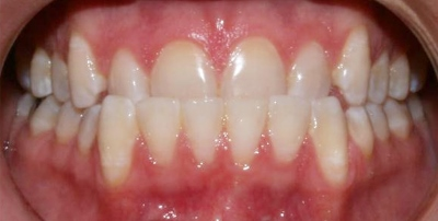 Invisalign_Adult-before